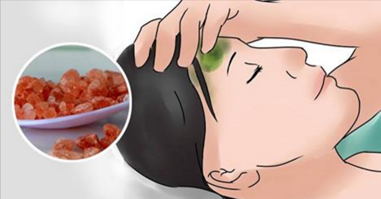 How To Instantly Stop A Migraine Using Just One Ingredient
