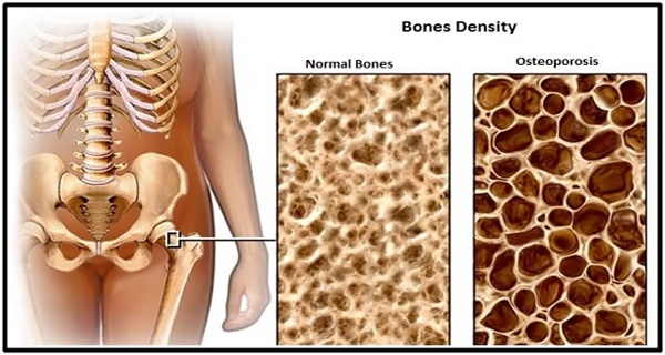 THESE 3 FOODS ARE THE BIGGEST GUARDIANS OF YOUR BONES AND PROTECT AGAINST OSTEOPOROSIS