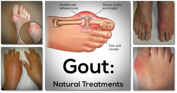 gout-remedy
