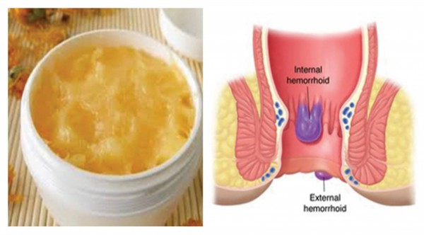 prepare-an-ointment-for-hemorrhoids-and-get-rid-of-them-forever