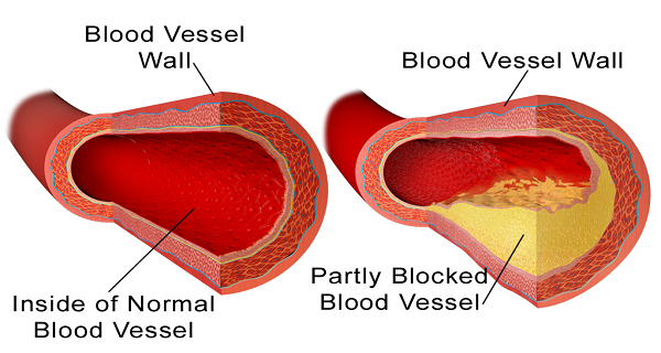 10 Foods to Clean Your Arteries of Plaque Buildup without Medications