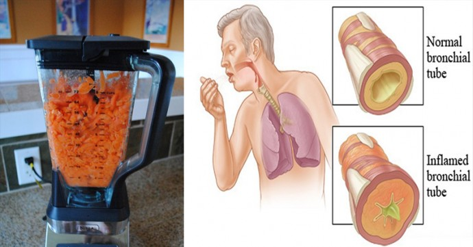 Carrots - The Natural Food to Remove Cough and Phlegm From Your Lungs (Recipe included)