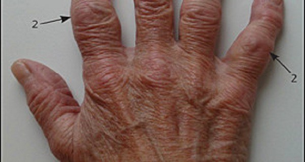 Cure-Osteoarthritis-And-Painful-Joints-With-These-3-Natural-Remedies