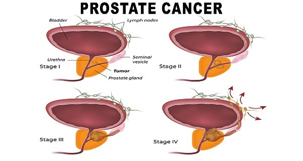 How to Kill Prostate Cancer With Just One Root!