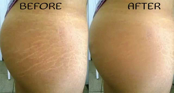 How-to-Remove-Stretch-Marks-Naturally-Within-6-Weeks