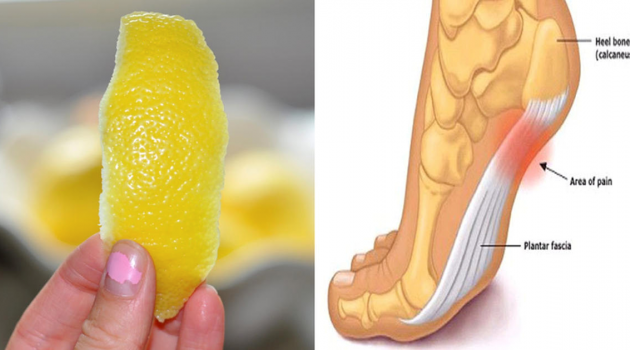 LEMON PEEL CAN SAVE YOU FROM CHRONIC JOINT PAIN