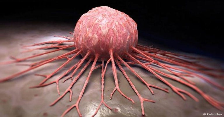 Medical Breakthrough - Any Type Of Cancer Can Be Cured In Just 2-16 Weeks