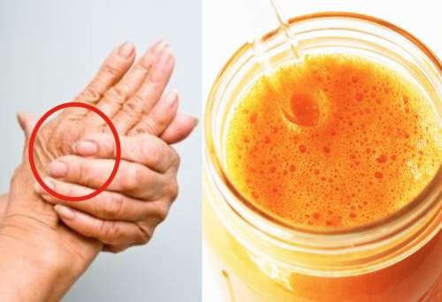 The Miracle Drink Which Treats Arthritis, Relieves Pain And Inflammation Almost Immediately!