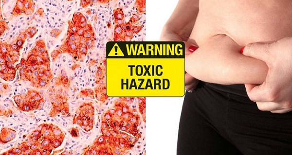 These Are The 4 Symptoms That Alert You That Your Body Is Full Of Toxins!