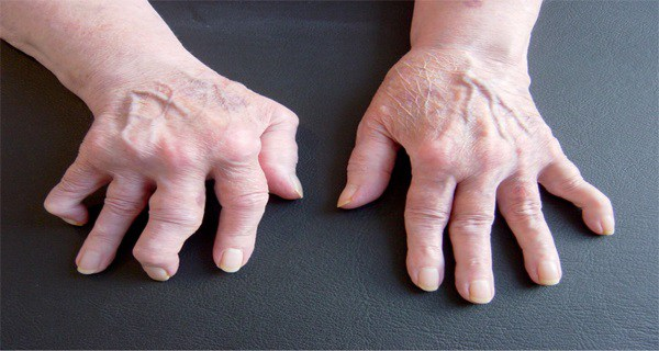 This-woman-cured-rheumatism-by-herself-Find-out-how-RECIPE