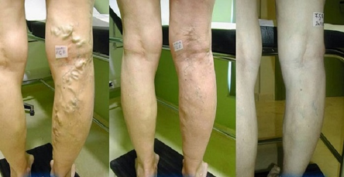 Varicose Veins - Learn How To Cure Them With Vinegar, Carrot And Aloe!