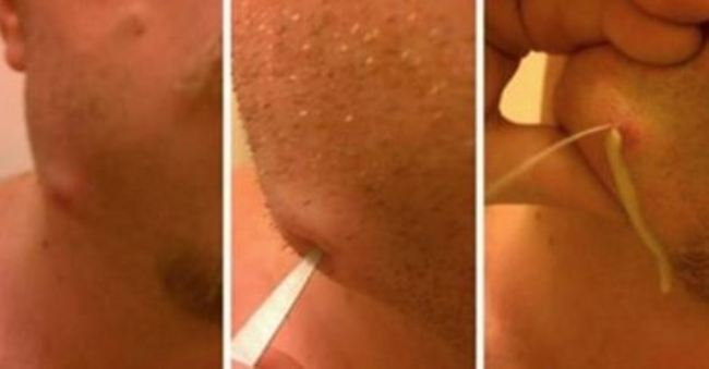 Video Of A Guy Popping His Own Tooth Infection Will Make You Sick!