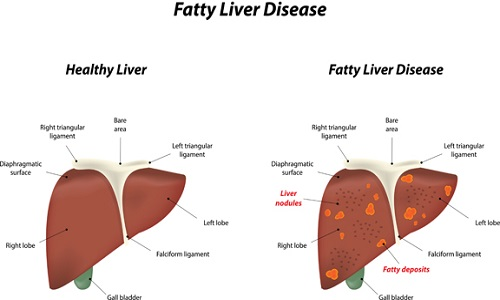 What Is Fatty Liver and How This Problem Can Be Resolved Naturally