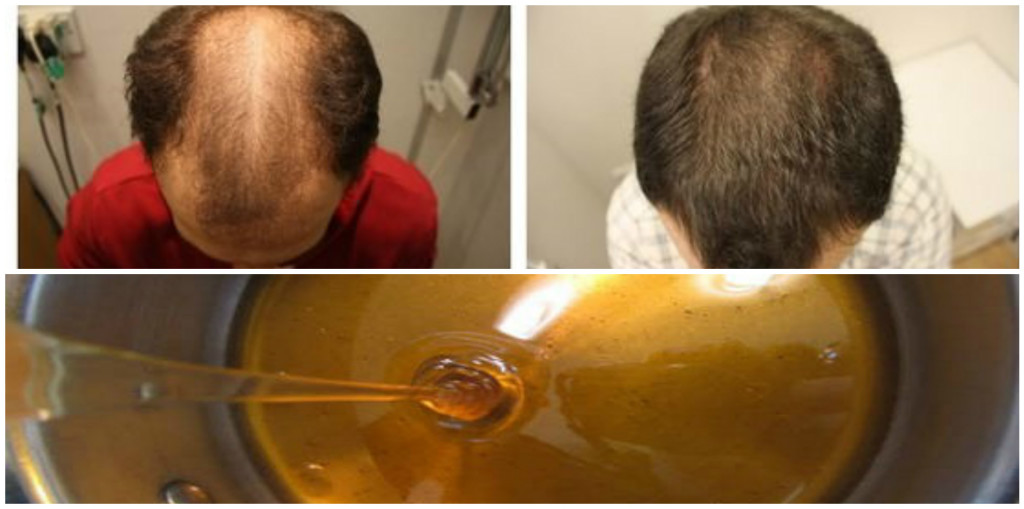 Baldness-Treatment-Recipe-After-Two-Days-Your-Hair-Will-Begin-To-Grow
