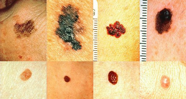 How To Recognize Skin Cancer – This Could Save Your Life