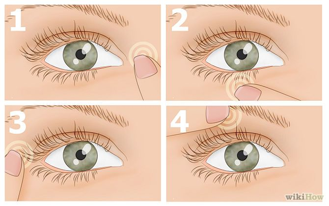 How to Get Rid of Eye Twitching! Eyelid Twitching