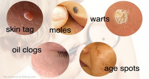 natural-ways-to-put-an-end-to-moles-warts-blackheads-skin-tags-and-age-spots