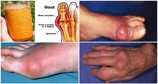 Say Goodbye To Gout Forever With This Powerful Natural Treatment!!!