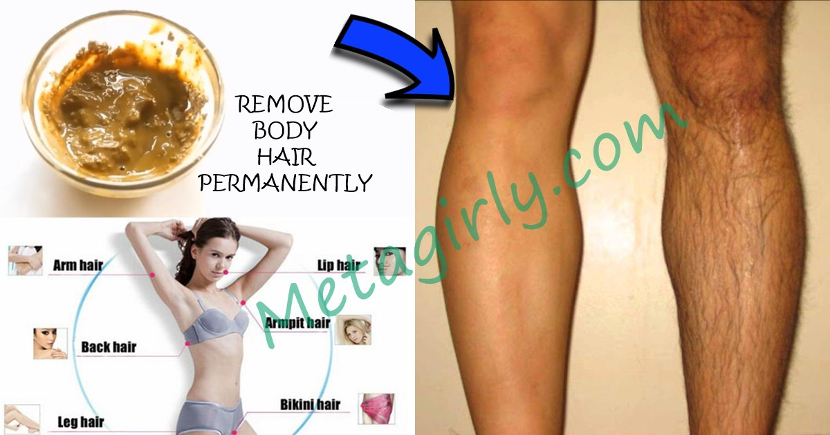 How To Naturally Remove Body Hair Permanently. ( No Waxing ...
