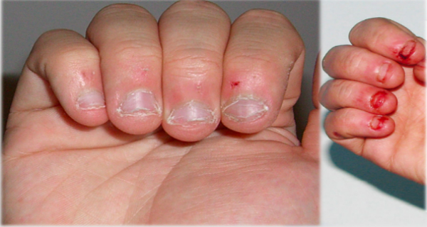 Do You Bite Your Nails? After These Shocking Facts You Will Stop!